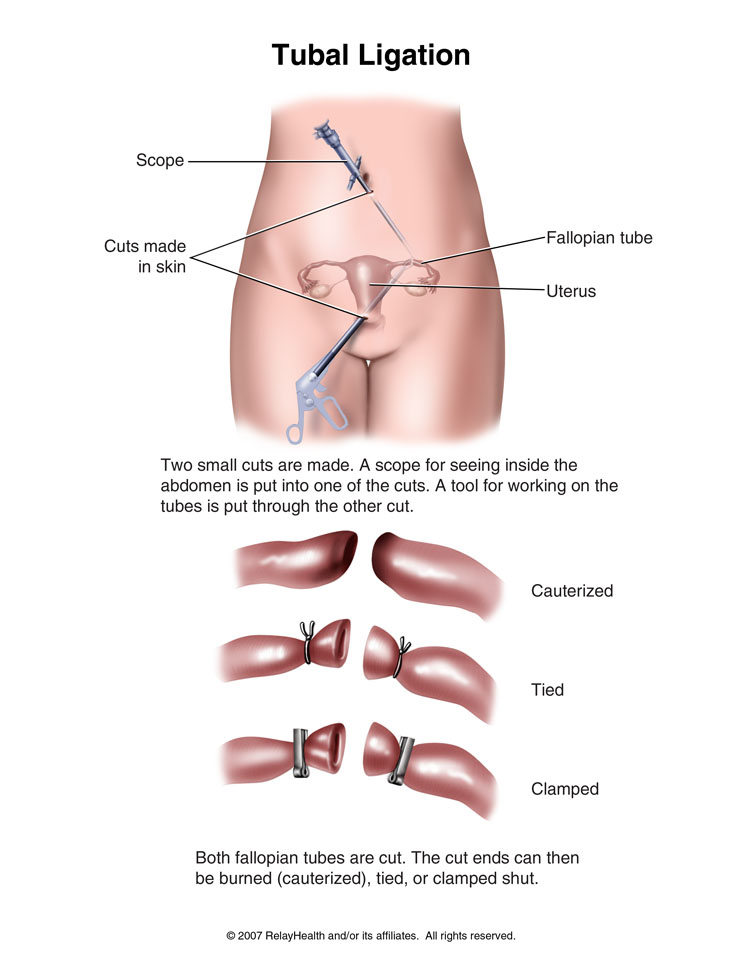 how do they tie your tubes photo - 1