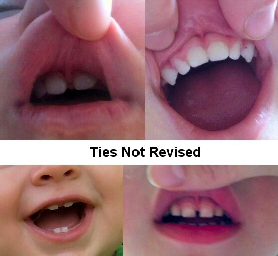lip tie vs normal photo - 1