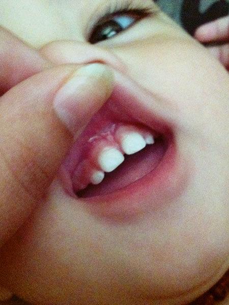 tongue tie laser surgery photo - 1